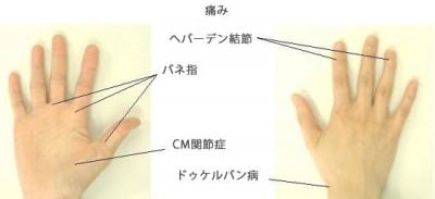 hand_ph03