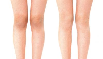 膝の黒ずみを消す方法