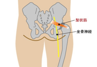 前 の 付け根 足 痛い 生理